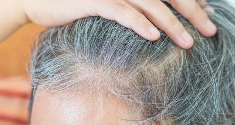 علت رنگ نگرفتن موهای سفید